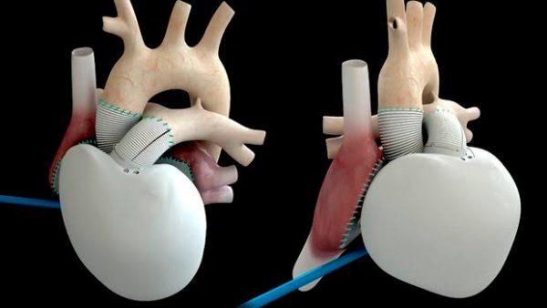 Jantung Buatan Menggunakan 10 Miliar Stem Cell